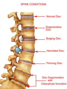 Freehold degenerative disc